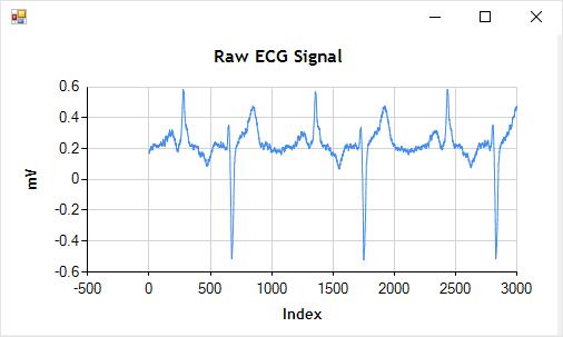 Raw ECG Signal