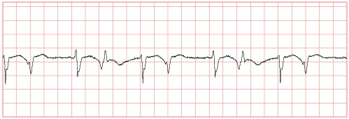 ECG waveform